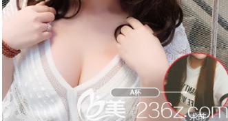 山东阳光美容整形医院假体隆胸案例