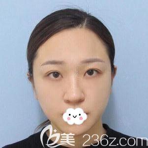 邯郸雅丽医疗美容门诊部刘亚莉术前照片1