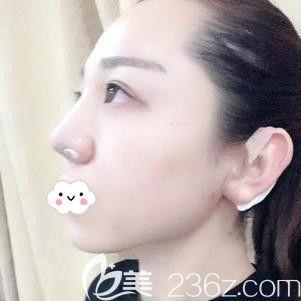 在邯郸雅丽刚做完耳软骨隆鼻术后鼻子微肿
