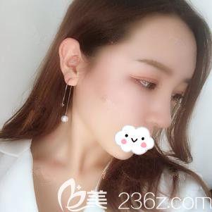 邯郸雅丽医疗美容门诊部刘亚莉术后照片1