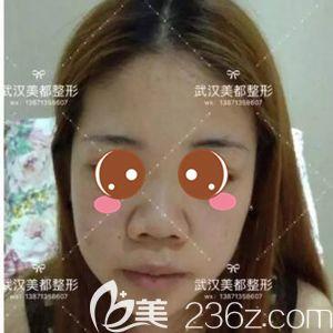 武汉美都医疗美容门诊部孟晓宇术前照片1
