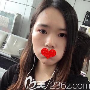 王志国医生为我刚注射完瘦脸针后有点肿胀