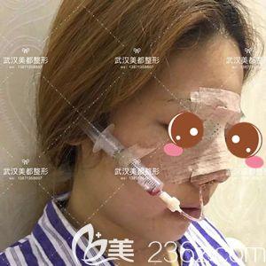 孟晓宇医生帮我做自体软骨鼻综合术后即刻