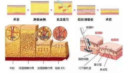 吸脂手术原理图片