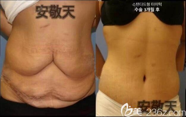 韩国纯真整形医院安敬天院长腰腹吸脂案例