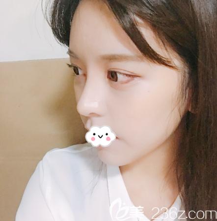 韩国原辰整形医院双眼皮隆鼻案例15天效果图