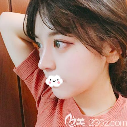 韩国原辰整形医院朴原辰做眼睛和隆鼻子怎么样