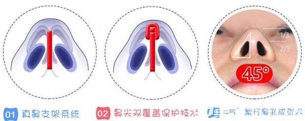 成都铜雀台整形美容医院真鼻子技术优势