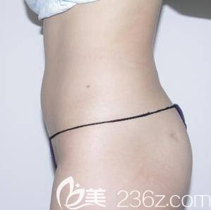 北京禾美嘉医疗美容诊所任学会术前照片1