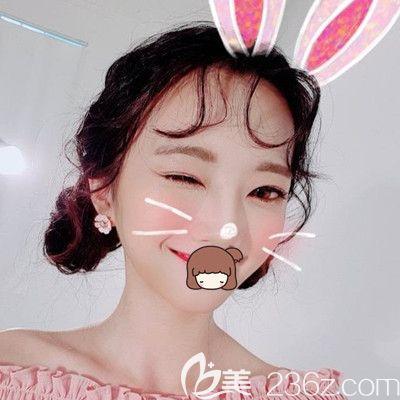 亲身经历告诉你我在韩国纯真做眼综合+鼻综合手术的效果很好