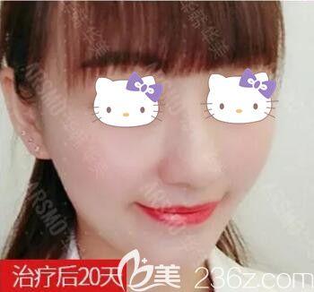 记录我在长沙华韩华美医疗美容医院做皮秒祛雀斑20天变化恢复过程图片