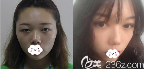 成都西区医院邓东伟眼综合前后对比图