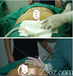 王沛森医生给我做脂肪丰臀手术中