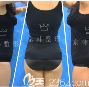 北京京韩王沛森自体脂肪丰臀案例