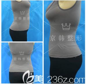 清楚王沛森在北京京韩长期坐诊且看自体脂肪隆胸效果尚好我就做了脂肪丰臀