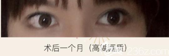 下至功课来啦说说我在韩国k整形做埋线眼角下至修复经历像个假手术无恢复期