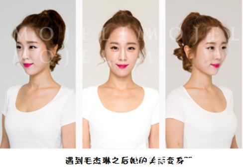 韩国毛杰琳额头缩小2cm发际线矫正1600毛终于获得了女性自然发际线