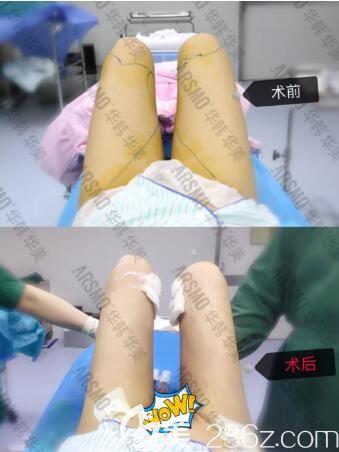 在长沙华韩华美做大腿吸脂术前术后即刻效果对比照