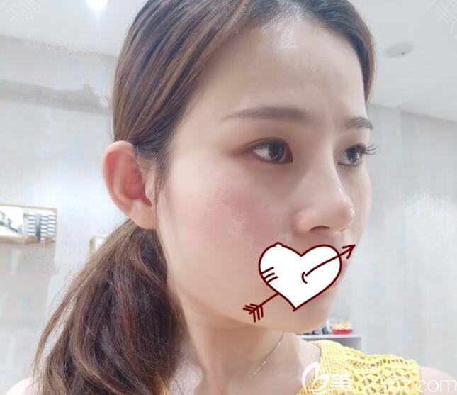 芜湖瑞丽整形正规吗?来看我找瑞丽罗伟做假体隆鼻失败修复手术的亲身经历,附恢复过程图