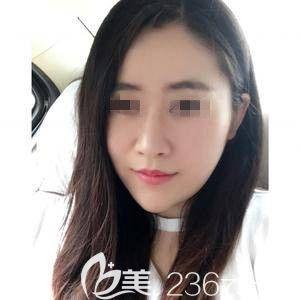 廊坊凯润婷医疗美容门诊部石砚安术后照片1