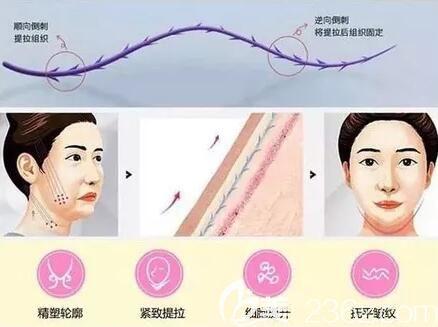 面部线雕多少岁做合适?