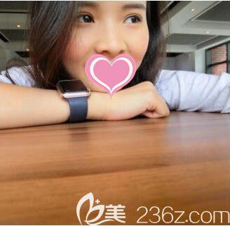 上海丽质卢九宁埋线双眼皮真人案例术后35天
