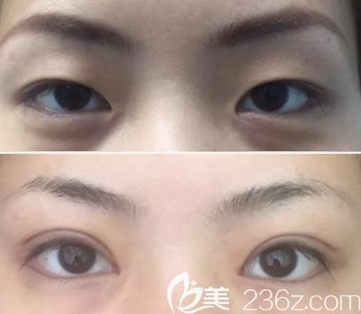 深圳美莱何玮医生做的双眼皮案例