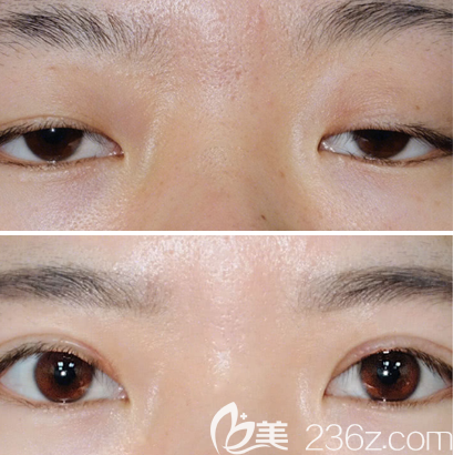 湖南第二人民医院整形科何玮双眼皮修复案例