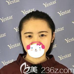 武汉艺星医疗美容门诊部车金昊术前照片1