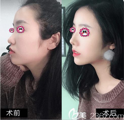北京上上相庞东亮医生假体鼻综合案例