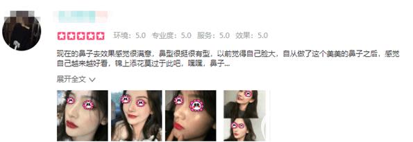 在北京上上相做过隆鼻的爱美者反馈评价展示