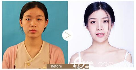 深圳yestar朱克辉做的双眼皮眼综合案例