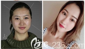 深圳yestar整形常德成做的双眼皮案例