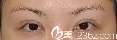 双眼皮术后睁眼费力