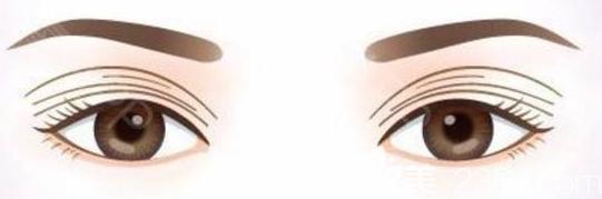 多层双眼皮