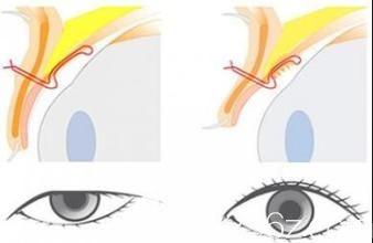 矫正上睑下垂手术示意图