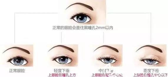不同眼睛情况示意图