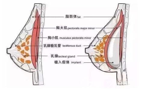 假体隆胸示意图