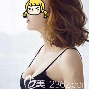 看海南瑞韩医学美容医院杨永成给我做的进口曼托假体隆胸术后30天恢复效果图怎么样!