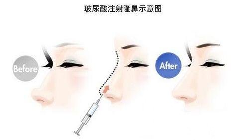 玻尿酸隆鼻整形手术步骤原理图