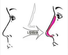 假体隆鼻示意图