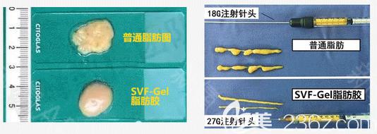 SVF-Gel脂肪胶和普通脂肪对比图