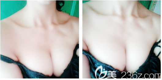 打听到牛克辉现在在深圳yestar整形医院坐诊后就找他做了假体隆胸,摸起来手感跟真的一样