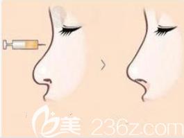 自体脂肪隆鼻效果示意图