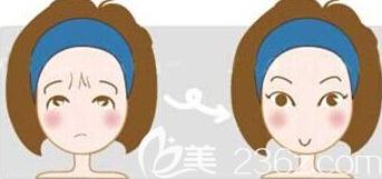 祛除眉间纹示意图