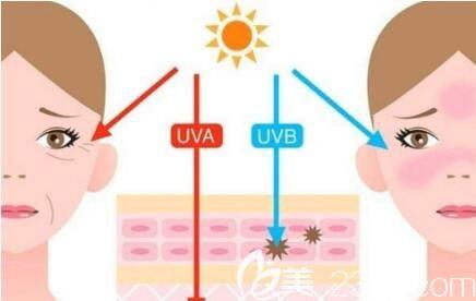 皮肤抗氧化是抗衰老吗?