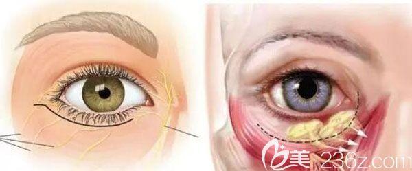 眼袋一旦形成怎么消除呢