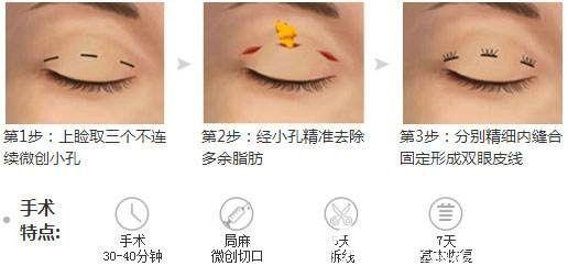 韩式三点双眼皮手术原理分享