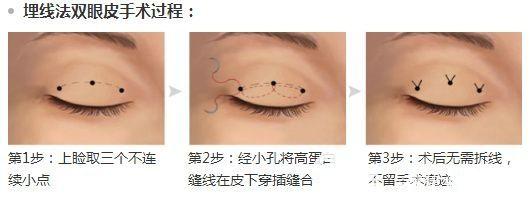 埋线法双眼皮手术过程