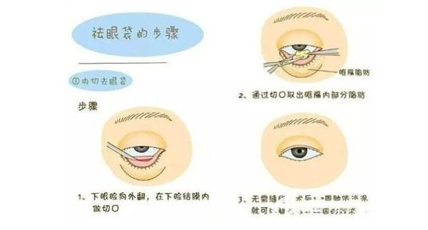 外切去眼袋手术